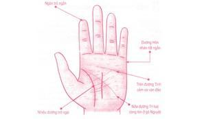 Bàn tay của người luôn bị tình đơn phương đeo đẳng