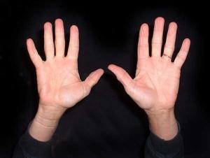 Hình dáng rìa lòng bàn tay tiết lộ nhân cách con người