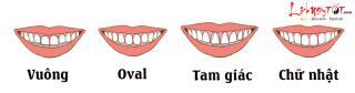"""Cặp răng cửa """"tố"""" bản chất con người thực sự của bạn"""