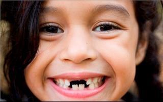 Mơ thấy bị rụng răng là điềm gì?