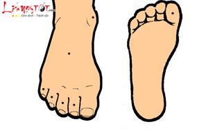 Mãi không thể giàu lên vì sở hữu những nối ruồi này ở bàn chân