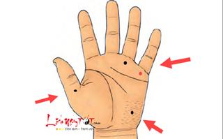Có nốt ruồi này ở bàn tay, nhân duyên tốt đẹp hạnh phúc viên mãn khó ai bì