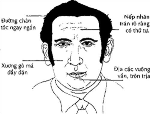 dia-cac
