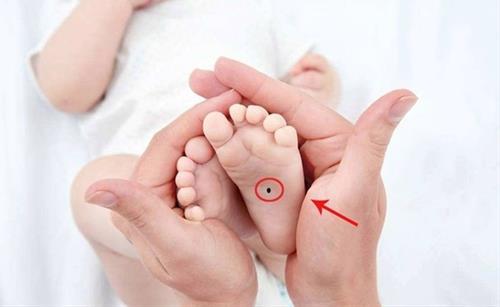 nốt ruồi ở lòng bàn chân